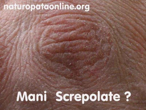 Mezzi di decolorazione di pelle in posti intimi