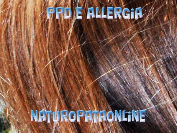 para-fenilendiammina ppd allergia
