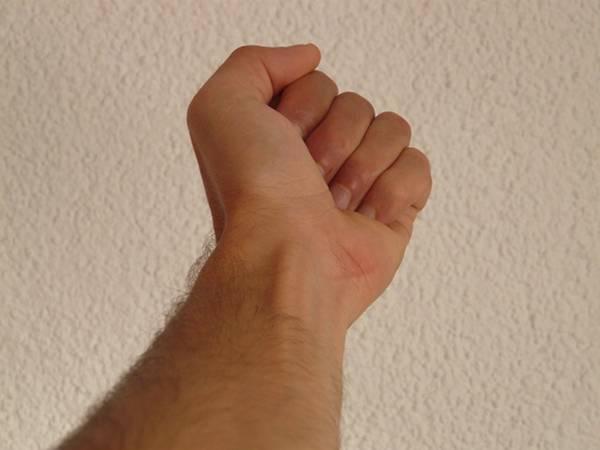 sindrome guillain braccio