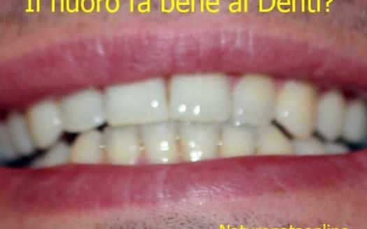 denti fluoro