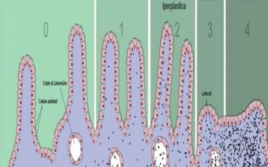 evoluzione villi intestinali