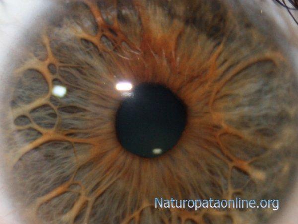 morfologia iride