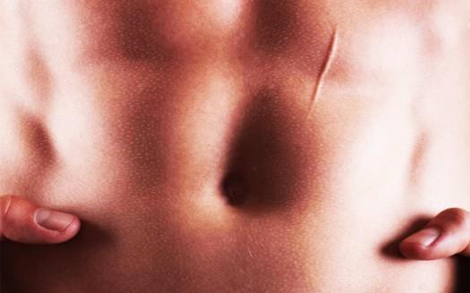 cheloide-cicatriziale-rimedi-naturali-prevenzione