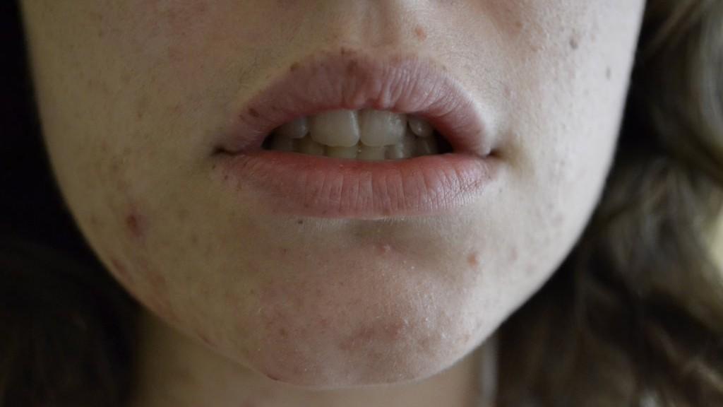 acne rimedi naturali