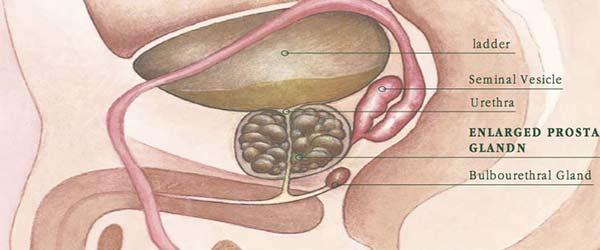 ayurveda e ingrossamento della prostata