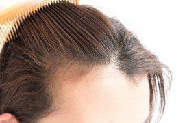 diradamento dei capelli