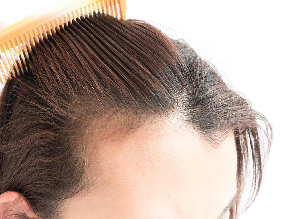 Caduta dei capelli donne cause e rimedi