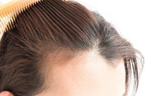Diradamento dei capelli: cause e 10 rimedi naturali ...