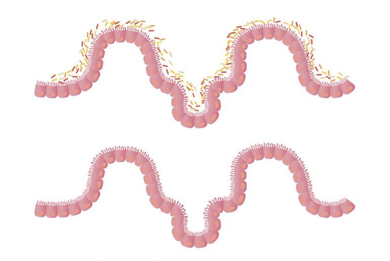 microbiota-colesterolo